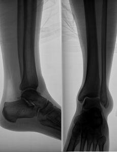 1002813_x-ray_image_of_the_leg.jpg