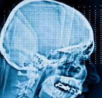 Millions in Grants Awarded for TBI Research